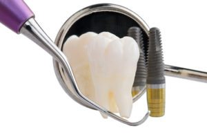 for-those-that-have-missing-teeth-replacing-them-with-dental-implants-is-almost-always-the-recommended-course-of-therapy